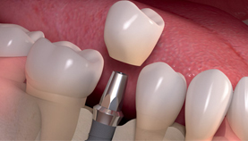 Dental Implants in Paschim Vihar