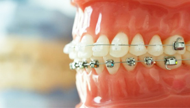 Orthodontic treatment in Paschim vihar