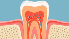 Root canal treatment in Paschim vihar
